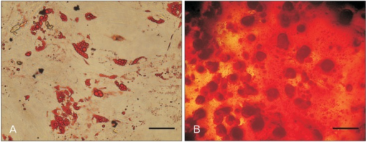 Differentiation potential assay of adipose-derived stem cells (ASCs) at fourth passage. (A) Lipid vacuoles inside the cytoplasm of adipoblasts appear as red circular spots after staining with oil Red O which stains triglyceride and neutral lipid. (B) Calcium deposition was shown by alizarin red S staining as dark red spots in the plate. Scale bars=30 µm (A, B).