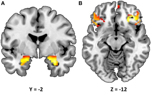 Statistical parametric map illustrating mean bilateral activity for the Faces > Shapes contrast. Activation clusters are presented for (A) the amygdala (peak voxel activation in the left hemisphere: x = −22, y = −6, z = −18, t = 28.55, p < 0.000001, kE = 179; right hemisphere: x = 28, y = −4, z = −20, t = 32.82, p < 0.000001, kE = 199) and (B) Brodmann areas 11 and 47 (peak voxel activation in the left hemisphere: x = 58, y = 28, z = 0, t = 15.60, p < 0.000001, kE = 143; right hemisphere: x = −52, y = 40, z = −2, t = 14.47, p < 0.000001, kE = 24). The clusters are overlaid onto canonical structural brain images in the coronal plane (y = −2) and axial planes (z = −12), respectively.