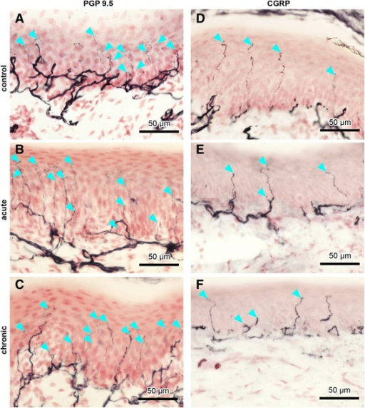 Intraepidermal nerve fibres (IENFs) in ipsilateral rat paw pad skin. Nerve fibres immunopositive for protein gene product 9.5 (PGP 9.5) (a–c) and calcitonin gene–related peptide (CGRP) (d–f) in controls (a, d), acute AIA (b, e), and chronic AIA rats (c, f). Turquoise arrowheads indicate fine-calibre intraepidermal nerve fibres that were counted according to the European Federation of Neurological Societies' counting rules, thus visibly crossing the basement membrane between epidermis and dermis. For evaluation of IENF density, the focus of the microscope was adjusted while we analysed the individual sections. Therefore, not all IENFs that are marked by turquoise arrowheads can be followed all the way through the epidermis in the images. Thicker fibres along the dermal–epidermal junction are subepidermal nerve fibres. Numbers of IENFs that reacted with antibodies against PGP 9.5 and CGRP did not change in animals with AIA compared with immunized-only controls. Original magnification × 40
