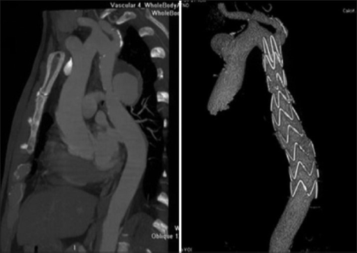 The anastomotic pseudoaneurysm occurred 30 years after aorta surgery and computed tomography scan showed the absolute exclusion of the aneurysm after 3 months of follow-up.