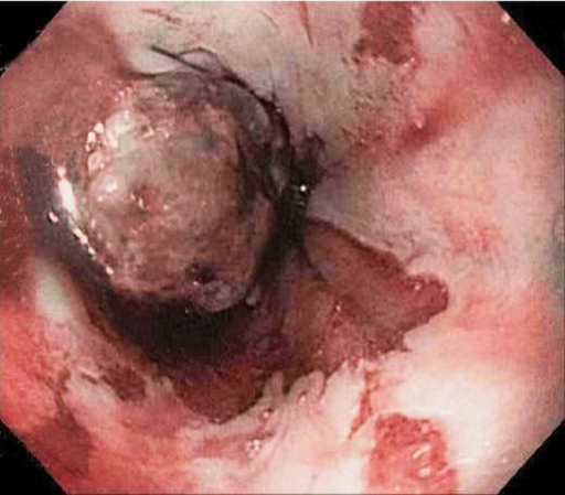 Esophageal mass at 33 cm.