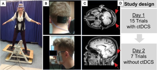 Experimental design.A: Subject performing the dynamic balance task on a Lafayette Instrument 16030 stability platform®. The individual shown in this figure has given written informed consent (as outlined in PLOS consent form) to publish these case details. Subjects were instructed to hold the platform in a horizontal position as long as possible, B: tDCS electrode position The top end of the cerebellar electrode (width 7 cm by height 5 cm) was centered 2 cm below the inion. Two reference electrodes were placed over the buccinator muscles bilaterally (5 cm x 5 cm). C: Position of the cerebellar electrode as revealed by axial and sagittal T1-weighted magnetic resonance imaging (MRI) scans in a healthy subject. Electrode paste leads to hyperintensive MRI signal. Position is indicated further by red arrows, D: Study design: Two days of training, cerebellar tDCS (ctDCS) was applied only on day 1. There were 15 trials on the first day and 7 trials on the second day of training, 30 seconds each.