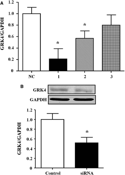 Effects of RNA interference on G protein–coupled receptor kinase type 4 (GRK4) expression in spontaneously hypertensive rat (SHR) renal proximal tubule (RPT) cells. A, GRK4 mRNA expression in SHR RPT cells treated with three GRK4 siRNAs (n=4, *P<0.05 vs control). NC indicates normal control. B, GRK4 protein expression in the #1 GRK4 small interfering RNA (siRNA)–treated SHR PRT cells (n=4, *P<0.05 vs control).