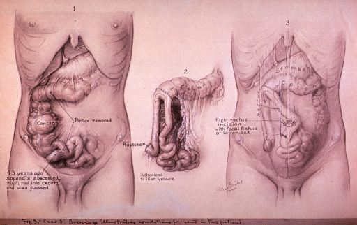 <p>Illustration depicting abdominal (intestinal) cancer in a male patient; also illustrated is site of previously ruptured appendix.</p>