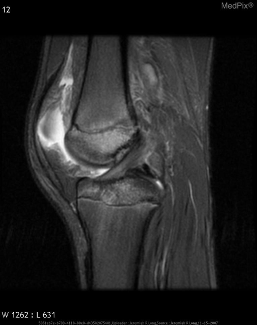 Sagital and coronal T2 fat suppressed images demonstrate diffuse high T2 signal in the bone marrow consistent with edema in the distal femoral metaphysis and proximal tibial plateau.  Additionally on the coronal T1 sequences there is an abnormal linear region of low signal extending from the joint space to the epiphysis at the intertrochanteric region of the femur.  Additionally there is slight assymetric widening of the physis medially.  These findings are consistent with a Salter Harris type III fracture of the distal femur.