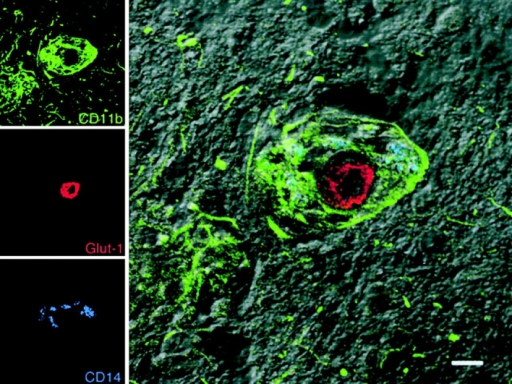 Accumulation of perivascular macrophages in the CNS of SIV-infected macaques. Images for individual channels (CD11b, green; Glut-1, red; and CD14, blue) are shown on the left and the merged image combining all three channels plus the DIC image are shown on the right. CD11b+ (green) and CD14+ (blue) perivascular macrophages (blue-green) accumulate around a CNS vessel (Glut-1, red) in an SIVE lesion. Parenchymal microglia that are CD11b+CD14− (green) outside of the lesion area maintain a reticular network, although their morphology has changed as a result of activation. Bar, 10 μM.