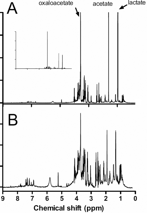 "A typical 1D 1H NMR spectrum of vitreous eye fluid from a uveitis patient. A: The original spectrum labeled to show the regions in which some typical biofluid components are known to give rise to resonances. The spectrum has been scaled to highlight the detail; the inset is the unscaled whole spectrum. B: A data reduced spectrum in which the region between 4.5 and 5 ppm has been deleted so that any contribution from residual water signal is eliminated. This spectrum has been ""binned"" into 0.005 Hz regions."
