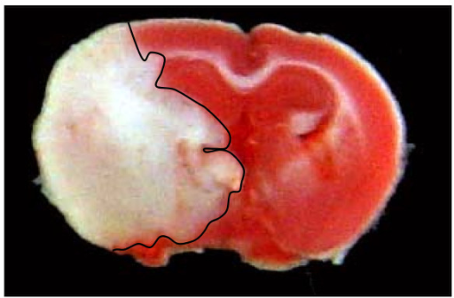 Representative coronal brain section from a mouse that had been subjected to MCA occlusion-reperfusion. This mouse had a one hour MCA occlusion and 72 hours reperfusion. The red staining indicates healthy brain tissue and the white indicates damaged tissue.
