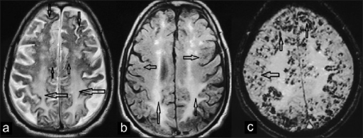 (a) T2 weighted axial MR image showing gyriform hypointense signal intensity foci along the surface of frontal and parietal cerebral convexities of both cerebral hemispheres (downward arrows). Small rounded signal void dots are seen in the cortices (upward arrows) with diffuse hyperintense signal intensity in the white matter (leftward arrows), (b) Axial T2 W fluid attenuated inversion recovery (FLAIR) image through the supraventricular level shows diffuse hyperintense signal intensity in the centrum semiovale bilaterally (upward arrows); small subcortical signal void foci are also seen (right and leftward arrows), (c) Susceptibility weighted (SWI) axial MR image through cerebral convexities above the ventricular level showing prominent gyriform (upward arrows) and innumerable small rounded signal voids (leftward arrow) in bilateral cerebral hemispheres.