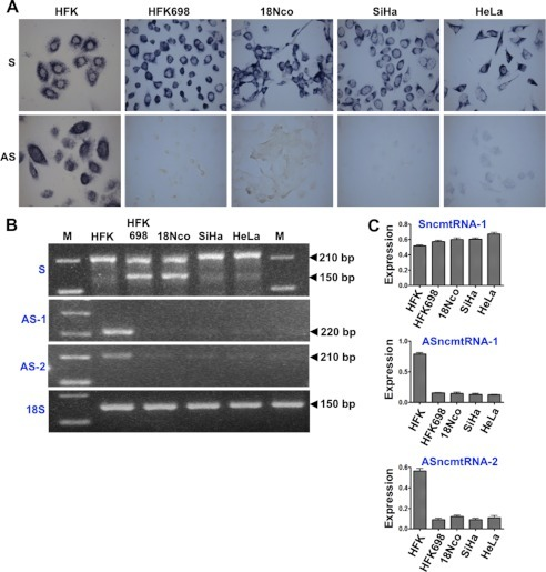 Immortalization of HFK with HPV induces down-regulation of the ASncmtRNAs.A, expression of the SncmtRNA and the ASncmtRNAs in normal HFK or HFK immortalized with HPV-16 (HFK698 cells) or 18 (18Nco cells) was analyzed by ISH. The ASncmtRNAs are down-regulated in the immortalized cells as well as in the corresponding tumorigenic cell lines SiHa (HPV-16-transformed) and HeLa (HPV-18-transformed). Magnification was ×40. B, expression of SncmtRNA-1 (S), ASncmtRNA-1 (AS-1), and ASncmtRNA-2 (AS-2) in the different cell lines was evaluated by RT-PCR amplification. The internal control used was 18S rRNA. M, 100-bp ladder. C, the relative intensity of the bands corresponding to the different non-coding mitochondrial RNAs was determined by densitometry and normalized against the intensity of the 150-bp amplicon from 18S rRNA.