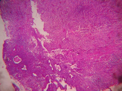 Microphotograph showing replacement of endometrial glands with histiocytic sheets with no evidence of malignancy (H&E: 4×).