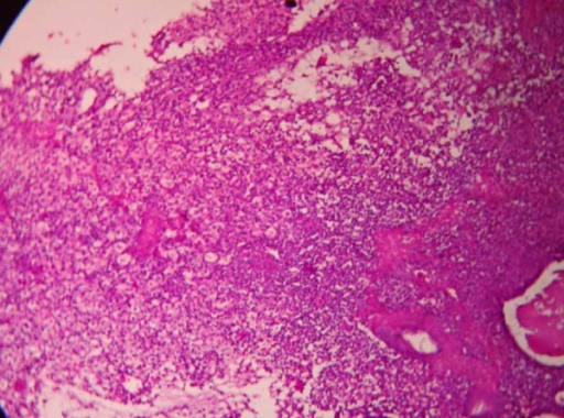Microphotograph showing sheets of histiocytes with endometrial glands (H&E: 10×).