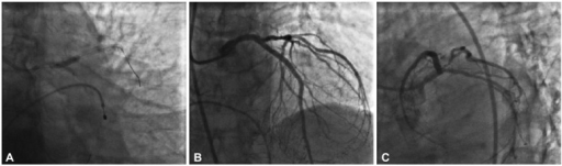 Percutaneous coronary intervention in the unprotected left main coronary artery. A: kissing balloon inflation. B and C: Thrombolysis in Myocardial Infarction III flow without any residual stenosis.