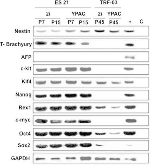 Expression patterns of ESC compared to TRF-O3 feeder cells in 2i and YPAC medium. Transcription levels of pluripotency and differentiation markers were compared in ES21 from passage 7 and passage 15 cultured of TRF-O3 as feeder cells in 2i-LIF and YPAC medium performing RT-PCR. + positive control: pooled cDNAs from pluripotent rat embryonic germ cell lines (Northrup et al.2011). GAPDH was used as endogenous control.