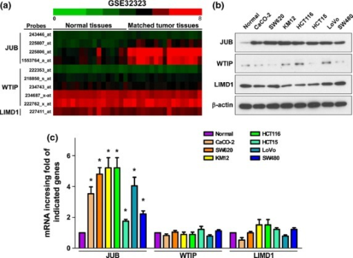 JUB is highly upregulated in colorectal cancer (CRC) specimens and cell lines. (a) Analysis of Ajuba family proteins transcriptional level in a published high-throughput microarray dataset (NCBI/GEO/GSE32323; n = 34). (b) Western blot analysis of the indicated proteins in CRC cell lines. β-actin was used as a loading control. (c) Real-time PCR analysis of Ajuba family proteins mRNA expression level. Expression data were normalized to β-actin and presented as mean ± standard deviation (SD) from three independent experiments. *P < 0.05 based on Student's t-test.