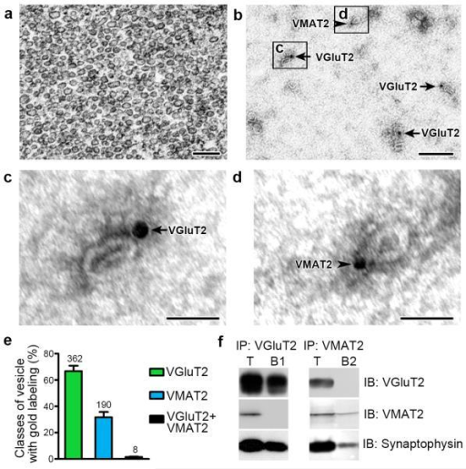 VGluT2 and VMAT2 localize to distinct subpopulations of synaptic vesicles (wild type rats)(a) Electron micrograph showing the purity and integraty of nAcc isolated synaptic vesicles used for either dual detection of VGluT2-IR and VMAT2-IR (b-d) or co-immunoprecipitation of VGluT2 and VMAT2 (f).(b-d) Detection of VGluT2-IR (arrows; 18 nm gold particles) or VMAT2-IR (arrowheads; 12 nm gold particles) associated to purified synaptic vesicles.(e) Bars indicating the frequency (mean + s.e.m.) of vesicles containing VGluT2-IR or VMAT2-IR from a total of 560 labeled vesicles. Out of these vesicles, 66.74 ± 4.10% have VGluT2-IR; 31.71 ± 3.99% have VMAT2-IR and 1.55 ± 0.35% appear to co-label for VGluT2 and VMAT2 (paired t-test, t(2) = 4.333, p = 0.0493). Synaptic vesicles were quantified from 3 different preparations of isolated vesicles from the nAcc of rats (n = 110).(f) Western blots of proteins from isolated vesicles prior to immunoprecipitation, IP (T), and after IP with antibodies against VGluT2 (IP:VGluT2; B1) or VMAT2 (IP:VMAT2; B2). Western blots were immunolabeled (IB) with antibodies against VGluT2, VMAT2 or the vesicular marker synaptophysin. The vesicular nature of each fraction was confirmed by the detection of synaptophysin. VGluT2 and VMAT2 are present in the total pool of vesicles (T). In contrast, VGluT2 is detected only in the sample IP with anti-VGluT2 antibodies (IP:VGluT2), and VMAT2 is detected only in the sample IP with anti-VMAT2 antibodies. The western blots were successfully repeated at least 3 times. Full-length blots are presented in Supplementary Figure 3.Bars: (a and b) 200 nm; (c and d) 50 nm.