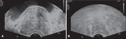 False positive prostate nodule. A: Cross-sectional sonographic image of prostategland showing hypoechogenic, relatively ill-defined nodule located in the middlethird of the left peripheral region. B: Sonographic image of the same regionshowing the biopsy needle within the previously described nodule. Histologicalanalysis revealed chronic nonspecific prostatitis.