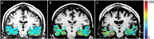 T1rho (T1ρ) contrast from medial temporal lobe overlaid on anatomic fluid attenuated T1ρ weighted images of control (A), medial cognitive impairment (MCI, B), and Alzheimer's disease (AD, C) patients. A progressive increase in T1ρ contrast in medial temporal lobe (MTL) region was observed from control to MCI to AD. No T1ρ contrast from CSF was depicted.