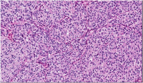 Lung postoperative pathology (H & E staining, ×200): metastatic breast ductal carcinoma.