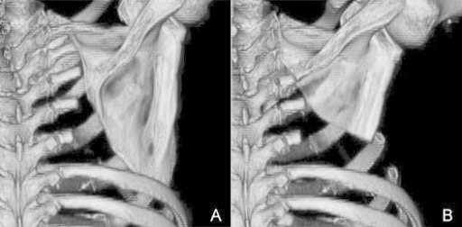 A: Computed tomography image after the initial lobectomy, with chest wall resection, showing that the scapula tip had fallen into the thoracic cavity. B: Excised scapula prevents it from falling into the thoracic cavity.