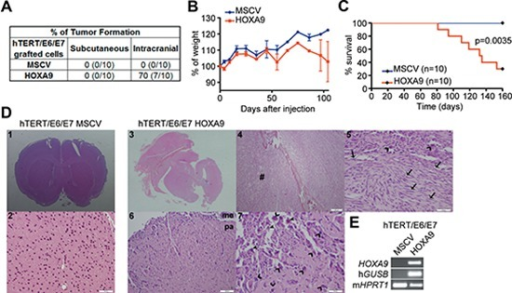 HOXA9 induces glioma initiation and tumor-associated death in intracranial orthotopic xenografts(A) Nude mice were injected with HOXA9-negative and HOXA9-positive hTERT/E6/E7 immortalized astrocytes, either subcutaneously or intracranially. No tumor formation was observed in the subcutaneous model, regardless of HOXA9 expression. In the intracranial orthotopic model, HOXA9-positive hTERT/E6/E7 cells originated tumors in the majority of tested mice (70%). (B) Mice intracranially injected with hTERT/E6/E7-HOXA9 cells display glioma-related loss of weight. (C) Kaplan-Meier survival curves showing tumor-associated death exclusively in mice bearing HOXA9-positive cells (Log-rank test, p = 0.0035). (D) Histological characterization of mice brains orthotopically-injected with hTERT/E6/E7-control or hTERT/E6/E7-HOXA9 cells. Brains from animals injected with HOXA9-negative cells display a normal, non-malignant appearance (images 1 and 2 at 20x and 200x magnification, respectively), while HOXA9-positive cells formed tumors displaying characteristic hallmarks of malignant gliomas (images 3, 4, 5, 6 and 7 at the magnification of 20x, 40x, 200x, 100x and 200x, respectively), including pleomorphic and spindle shape tumor cells (arrows), high mitotic activity (open arrowheads), prominent nuclear polymorphism (closed arrowheads), and infiltration to meninges and brain parenchyma (6 and 7). In image 4, cells infiltrating bone and soft tissues (#) presented a more sarcomatoid appearance, amplified in image 5. (E) RT-PCR analysis confirmed the expression of human GUSB housekeeping gene and HOXA9 exclusively in HOXA9-positive xenografts. Me = meninges; pa = brain parenchyma.