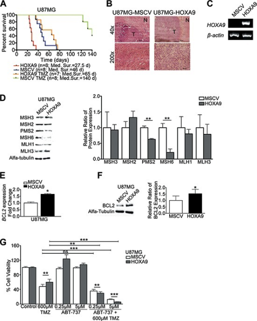 HOXA9 decreases overall survival and increases resistance to temozolomide in vivo via mismatch-repair and BCL2 proteins(A) Kaplan-Meier survival curves for in vivo orthotopic intracranial GBM models. While temozolomide (TMZ) treatment successfully increased overall survival, HOXA9-positive tumors cause significantly decreased overall survival in both untreated and TMZ-treated animals (Log-rank test HOXA9 vs MSCV, p = 0.0001; HOXA9 TMZ vs MSCV TMZ, p < 0.0001). (B) Hematoxylin-eosin staining of mice brains showing a well-delimited tumor area (T  ) with GBM-like features, and surrounding non-tumor brain tissue (N). (C) RT-PCR analysis confirmed the expression of HOXA9 in brain tumors derived from U87MG-HOXA9-xenografted cells. (D) Western Blot to mismatch-repair proteins (MMR), showing that HOXA9 decreases the expression of PMS2 and MSH6 proteins in U87MG cells in vitro. (E) and (F) qPCR and Western blot analyses of BCL2 mRNA and protein levels, respectively, showing HOXA9 significantly increases BCL2 levels. Results are representative of three independent experiments for each blot. (G) Cell viability of U87MG HOXA9-negative or -positive cells after 4 days of treatment with vehicle, Temozolomide (TMZ), ABT-737 (BCL2 inhibitor), or both. HOXA9-positive cells are significantly more sensitive to the combination of TMZ and ABT-737 than HOXA9-negative cells. Results are representative of three independent experiments, performed in triplicates (data points represent mean ± standard deviation). Statistical differences calculated by Student t-tests (*p < 0.05; **p < 0.01; ***p < 0.001).
