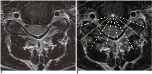 Epicenter and number of involved segments (NIS) of herniated disc on MRI.45-year-old female with left upper extremity tingling sensation. A. T2-weighted axial imaging shows disc protrusion at C5-6 level. B. Eight virtual lines delimit seven segments, and epicenter (6) and NIS (5, 6, and 7; i.e., three segments) of herniated disc material are determined.
