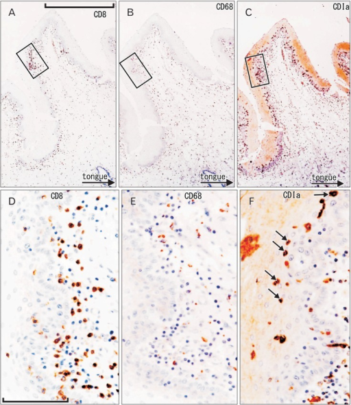 CD1a-positive Langerhans cells, CD8-positive T lymphocytes, and CD68-positive macrophages in the oral floor mucosa. Immunohistochemistry of CD8 (A, D), CD68 (B, E), and CD1a (C, F). Panel (A-C) display the same mucosal fold using adjacent sections at the same magnification (scale bar in panel A=1 mm), while panels (D-F) correspond to square in panels (A-C), respectively at the same magnification (scale bar in panel D=0.1 mm). Thus, the positive cells do not show maximum density in panels (E) and (F). Some of suppressor lymphocytes have migrated into the epithelium (D), in contrast to macrophages (E). The epithelium contains abundant spherical Langerhans cells (arrows in panel F).