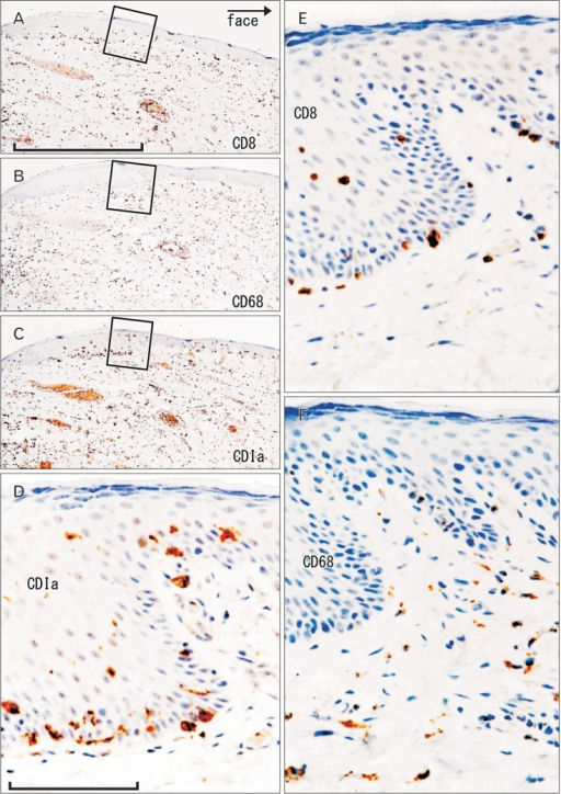 CD1a-positive Langerhans cells, CD8-positive T lymphocytes and CD68-positive macrophages in the lower lip. Immunohistochemistry of CD8 (A, E), CD68 (B, F), and CD1a (C, D). Panels (A-C) display the same site using adjacent sections at the same magnification (scale bar in panel A=1 mm), while panels (D-F) correspond to square in panels (A-C), respectively at the same magnification (scale bar in panel D=0.1 mm). Thus, the positive cells do not show maximum density (E, F).