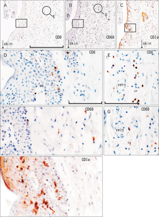 CD1a-positive Langerhans cells, CD8-positive T lymphocytes, and CD68-positive macrophages in the anal canal. Immunohistochemistry of CD8 (A, D, E), CD68 (B, F, G), and CD1a (C, H). Panel (A-C) display the same mucosal groove using near sections at the same magnification (scale bar in panel A=1 mm), while panels (D), (F), and (H) correspond to square in panels (A-C) at the same magnification (scale bar in panel D=0.1 mm). Thus, the positive cells do not show maximum density (D, F). Panels (E) and (G) (scale bar in panel E=0.1 mm) show submucosal tissue around a vein (corresponding to circle in panels A and B, respectively). Suppressor lymphocytes as well as macrophages are concentrated not in and along the epithelium, but near the submucosal vessels (D-G). Langerhans cells extend in parallel with (not toward) the epithelial surface (H).