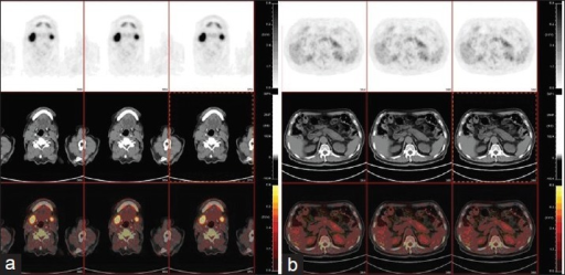 Positron emission tomography and computed tomography (PET-CT) images. (a) Abnormal 18-fluorodeoxyglucose uptake in bilateral submandibular glands and parotid glands. The maximum standardized uptake value (SUV) of the submandibular glands was 11.16, and of the parotid glands was 10.86; (b) The tail of the pancreas was mildly swollen. The maximum SUV was about 4.48, and about 5.06 after a delayed scan.