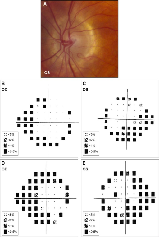 Patient 5.Notes: (A) OS optic disk has pink and regular NRR (OD examination was similar to OS examination). (B and C) Humphrey Visual Field 24-2 SITA-Standard protocol with superior and inferior arcuate defects OS > OD, and superior and inferior nasal step defects OU. (D and E) Interval Humphrey Visual Field 24-2 SITA-Standard protocol (obtained 6 years later) demonstrates glaucomatous progression with denser superior arcuate defects OU.Abbreviation: NRR, neuroretinal rim.