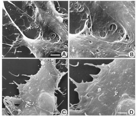 SEM observations of HUVECs (A-B) and BECs STR-4 (C-D) treated with 100 nM di-h-HALI for 120 min. (A) HUVECs exposed to di-h-HALI show significant signs of cell contraction; i.e. the cytoplasm is retracted and numerous fine cytoplasmic extensions appear (arrows). Scale bar, 5 μm. (B) High magnification image of the cytoplasm shows a smooth surface and the lack of fenestrated structures (compare with Fig. 2C for the difference with LSECs). Scale bar, 2.5 μm. (C-D) di-h-HALI treated BECs STR-4 show features similar to those seen in A and B (scale bars [C] 5 μm, [D] 2.5 μm).