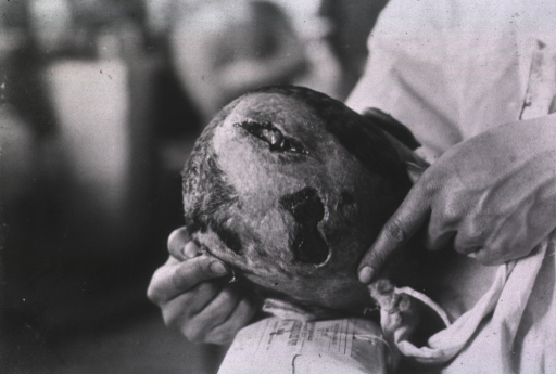 <p>View of two open wounds located on top of the patient's head.</p>