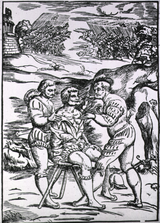 <p>Surgical operation on the sidelines of a battlefield; a soldier with a chest wound is being treated by a surgeon who is removing an arrow; the patient is sitting on a stool and the surgeon's assistant is standing behind him holding his shoulders.</p>