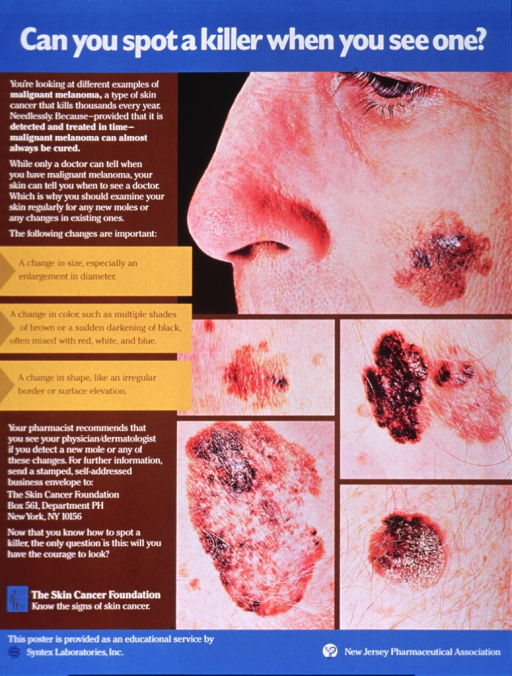 <p>Multicolor poster with white and brown lettering.  Title at top of poster.  Visual images are color photo reproductions featuring skin lesions of varying sizes.  Lengthy text on left side of poster identifies the lesions as malignant melanomas and provides tips for recognizing important changes in moles.  The Skin Cancer Foundation is highlighted as a resource.  Publisher and sponsor information at bottom of poster.</p>