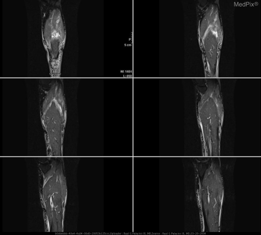 Coronal STIR MRI images though the calf demonstrates tubular fluid isointense signal between the aponeurosis of the soleus and the gastrocnemius.
