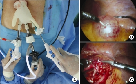 (A) A 10 mm rigid laparoscope was inserted into the peritoneum through a 12 mm trocar, and the laparoscopic instruments (LaparoAngle®; CambridgeEndo, Framingham, MA, USA) were inserted into the other two trocars. The intraoperative photograph shows the renal cyst (B), which was exposed with the use of LaparoAngle® dissectors (CambridgeEndo), and the suture on the right side of the ureter (C).