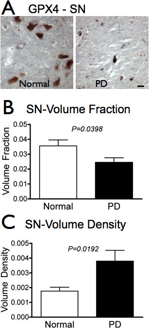GPX4 is reduced overall but increased relative to cell density in PD SN. A. GPX4 (dark grey) is visibly reduced in SN of PD subjects (n = 12) compared to controls (n = 11). B. Total immunoreactivity of GPX4 is significantly reduced in SN of PD subjects compared to controls (P = 0.0398, Student's t-test). C. GPX4 immunoreactivity is increased relative to cell density (P = 0.0192, Student's t-test). Scale bars: 20 μm.