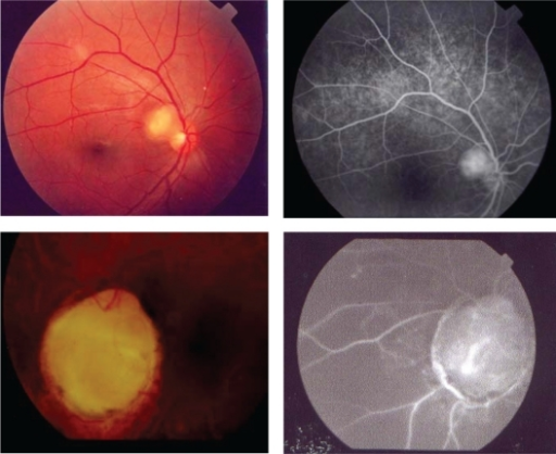Color retinography – right and left eye and fluorescein angiography – late phase – right and left eye.
