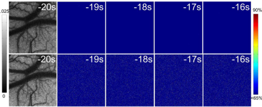 Spatiotemporal change of  during the pre-stimulation stage: the first row shows the  (from the left to the right) using random process estimator; the second raw shows the  (from the left to the right) using temporal LASCA.