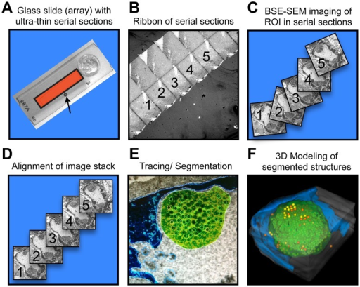 Outline of the serial section array scanning electron microscopy (SSA-SEM) method.SSA-SEM enables the three-dimensional reconstruction of cell nuclei and PML domains combined with the visualization and quantification of VZV capsids with ultrastructural precision. (A) Ribbons of ultrathin serial sections are placed on gelatin-coated glass slides and then carbon-coated to prevent charging effects during SEM imaging. The indicated area (red square) contains about 60 consecutive sections. A standard TEM slot-grid (arrow) commonly used in serial section TEM and a ten-cent coin are shown for size comparison. (B) Low magnification view of a ribbon of serial sections imaged by SEM using a back-scattered electron detector (BSE). (C) Using BSE-SEM, regions of interest (ROI), such as whole cells, nuclei or PML-domains can be identified and then repeatedly imaged in consecutive sections, yielding a stack of unaligned digital images of the ROI. (D) The stack of digital images must be aligned, either manually or automatically, for later 3D reconstruction. (E) Structures of interest, such as electron dense heterochromatin (blue), PML domains (green) and VZV capsids (yellow) are manually or automatically (threshold) traced in each serial section for quantification of numbers, areas or volumes and for the visualization of size, shape and distribution of segmented structures in the final 3D model (F).