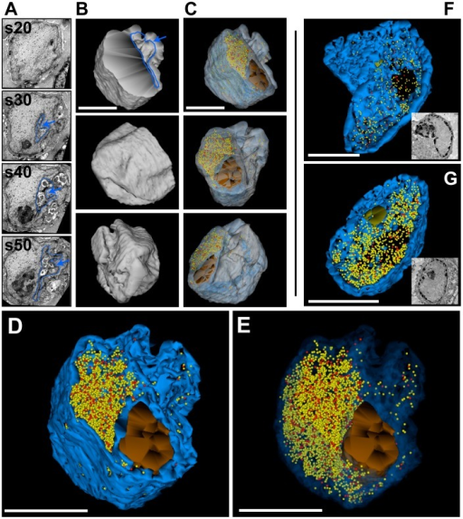Three-dimensional distribution of VZV nucleocapsids in cell nuclei without PML cages.Melanoma cells were infected with VZV for 48 h and processed for SSA-SEM (A–E) or serial section TEM (F and G). A) BSE-SEM images of four representative sections (s20, s30, s40, s50) from a series of 50 consecutive 100 nm sections are shown. A nuclear indentation is outlined and marked with a blue arrow. See also Video S1. (B) 3D model of the shape of the VZV infected nucleus (grey). Upper panel (front view): the cross section plane and a deep invagination (blue arrow) of the nucleus are visible. The middle panel (side view) and bottom panel (rear view) reveal the irregular shape of the nucleus with numerous indentations. (C) View of the same nucleus at different angles in transparent mode. Color code: transparent grey, boundary of the nucleus; transparent blue, electron dense heterochromatin; brown, nucleolus; red spheres (mature capsids, C-type) and yellow spheres (immature capsids, A and B-type). A total of 4,223 capsids were identified and visualized. (D) Higher magnification view; color code as in C, but nuclear envelope not shown. The dense heterochromatin (solid dark blue) hides nucleocapsids that are located deeper in the nuclear volume. (E) Same view as in D, but with transparent heterochromatin: the distribution of capsids throughout the nucleus is revealed. See also Video S2. (F and G) Two different nuclei that were reconstructed from serial sections imaged by TEM. The color code is the same as above. Insets show representative images from the TEM series. The 3D models show the distribution of 425 (F) and 1,340 capsids (G), respectively. See also Video S3. All scale bars are 5 µm.