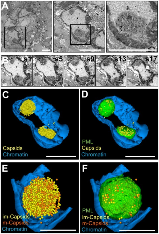 Three-dimensional distribution of VZV nucleocapsids in host cell nuclei with PML cages.Melanoma cells that express doxycycline-induced PML IV were infected with VZV for 48 h and processed for BSE-SEM imaging. (A) BSE-SEM images at different magnifications of a syncytium of VZV infected melanoma cells. Left panel: low magnification view of a syncytium; middle panel: one nucleus of the same syncytium with two PML cages; right panel: higher magnification view of a PML cage with sequestered VZV capsids. Black squares indicate areas that are shown at higher magnification in the panels to the right. Scale bars are 5 µm. (B) Five representative images (s1, s5, s9, s13, s17) from a series of 18 consecutive sections through the nucleus shown in A, middle panel. See also Video S4. (C and D) 3D models based on tracing and segmentation in all 18 sections of electron dense heterochromatin (blue); nucleocapsids (yellow spheres) and PML cages (green, shown only in D). 1,732 and 1,324 capsids were identified in the upper and lower PML cage, respectively). Scale bars are 5 µm. See also Video S5. (E and F) 3D models of the upper PML cage. Color code as above, but immature capsids (A and B-type capsids) are shown as yellow spheres and mature capsids (C-type) in orange; the PML cage is transparent green (shown only in F). Scale bars are 2 µm.