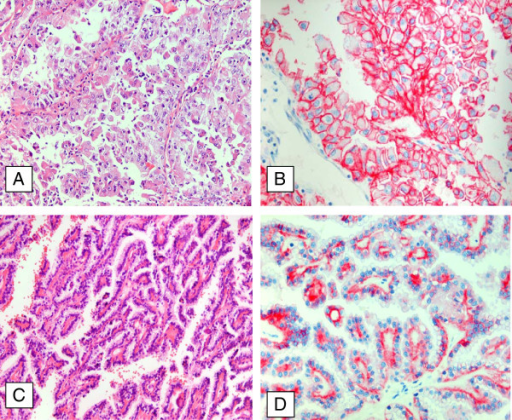 Immunohistochemistry of N-cadherin expression in papillary RCC. Papillary RCC type II with high nuclear polymorphism and abundant cytoplasm of the tumor cells (A, x20) displays a strong membranous expression of N-cadherin (B, x40). Papillary RCC type I with a single layer of cuboidal cells and a small cytoplasmic rim (C, x20) shows only a weak cytoplasmic N-cadherin (D, x40).