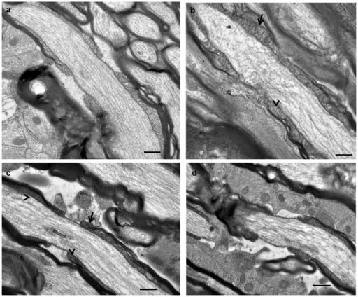 Representative TEM images from normal ventral ON (a) and from day 1 after injury (b–d).Note the disorganisation, lack of definition (arrow head) and multi – layering (arrows) in the paranodal loops from ON vulnerable to secondary degeneration (b, c) and the complete breakdown in structure of one paranode in a node/paranode complex (d), scale bar  = 0.5 μm.