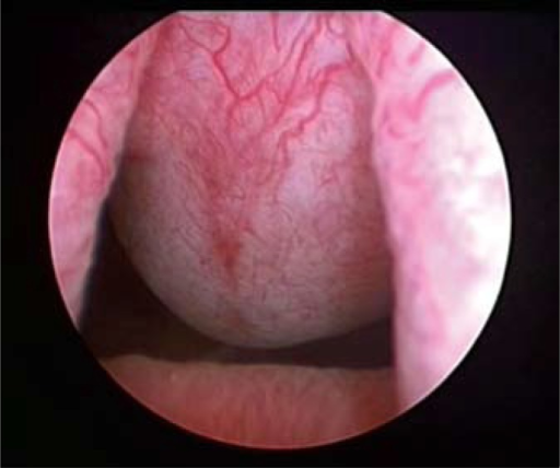 Cystoscopy (bladder neck).