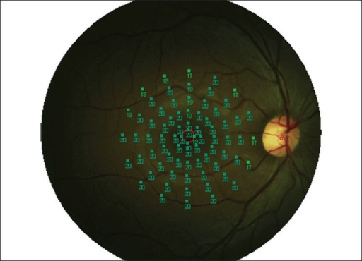 MP1 fundus perimetry study protocol performed in the central 20° with 76 stimulus points