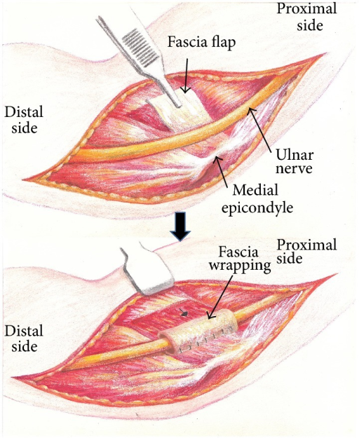 Schematic illustration of the wrapping procedures.
