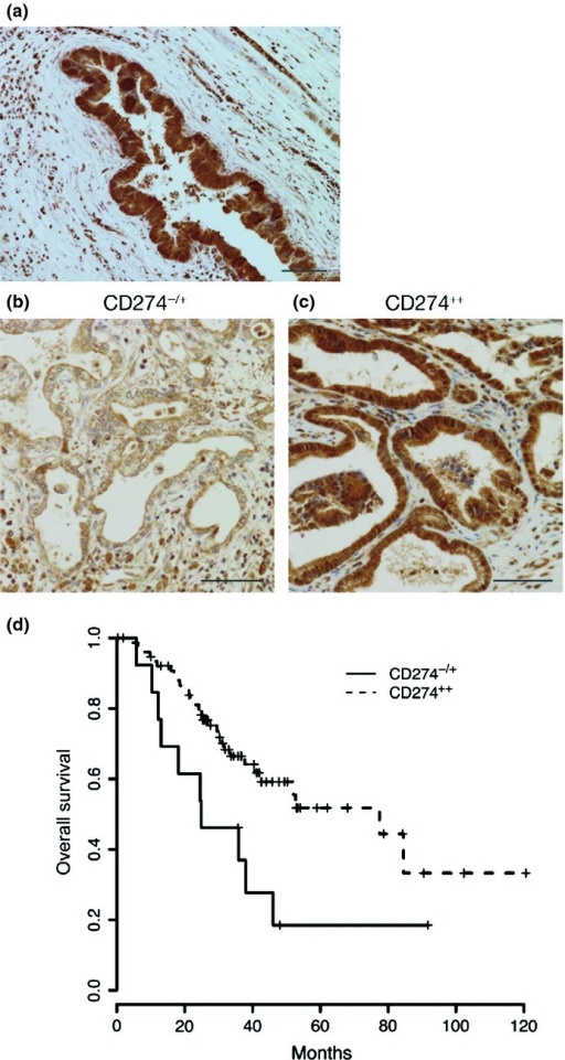 CD274 expression in cholangiocarcinoma specimens and prognosis of cholangiocarcinoma patients. (a) Normal bile duct staining with an anti-CD274 antibody. Bar, 100 μm. (b,c) Representative results of the anti-CD274 staining of clinical specimens obtained from 91 patients by surgical resection. CD274 immunohistochemistry was scored as described in Materials and Methods. Bar, 100 μm. (d) Kaplan–Meier analysis for the disease-specific survival rate of the two groups.